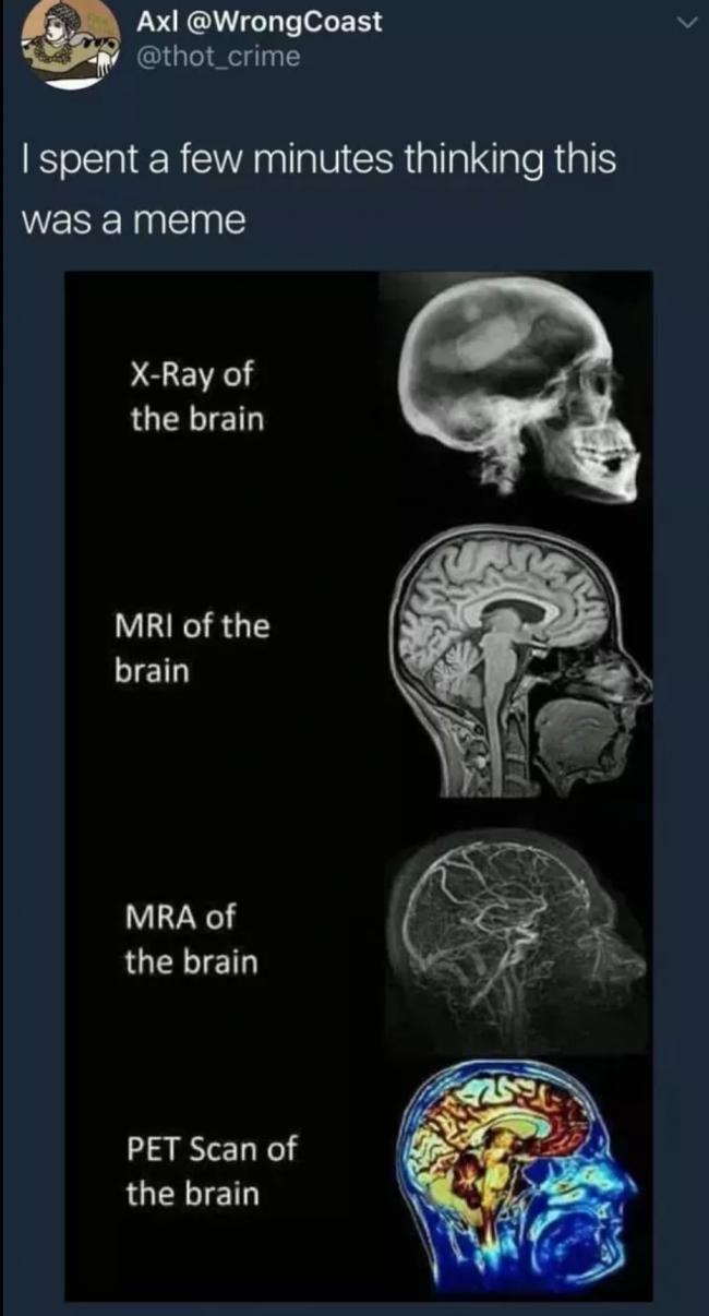 braindump-022-2018-15